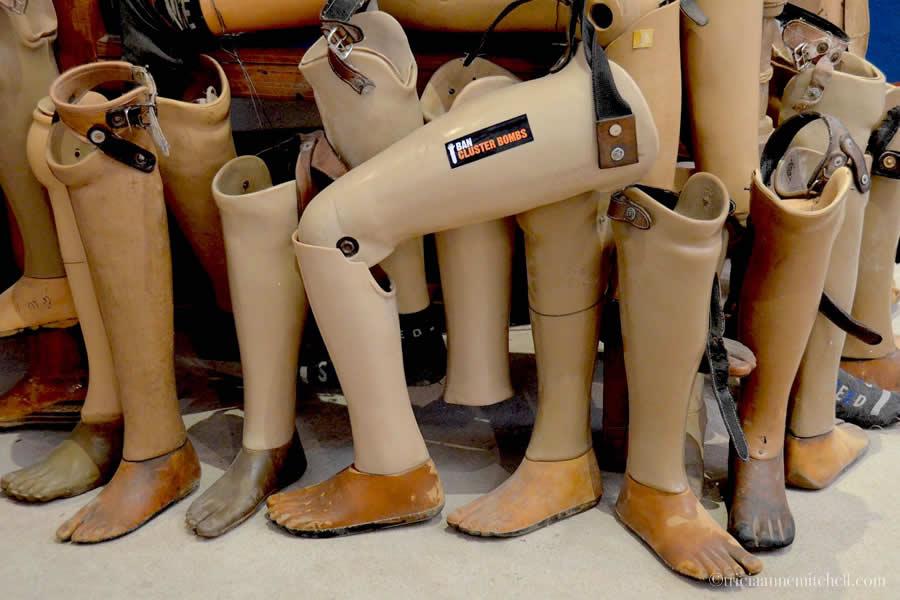 Prosthetic Limbs COPE Visitor Center Vientiane